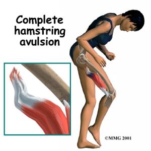 knee_hamstring_symptom01